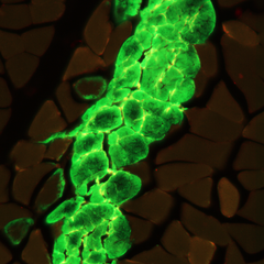Muscle fibrosis- PNG.png